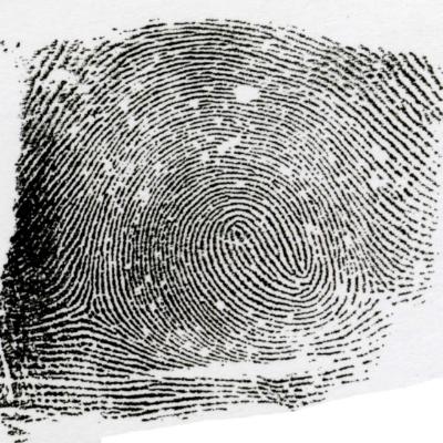 左一連分離紋とは、咬合渦状紋よりも大きい流れであり、それぞれの流れの頂点がUターンした形状になっています