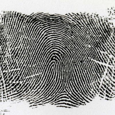 左流蹄状紋とは、馬蹄形が左側に流れる模様を言います。また、左手にあるときは乙種蹄状紋といい、右手にあるときは甲種蹄状紋と言います