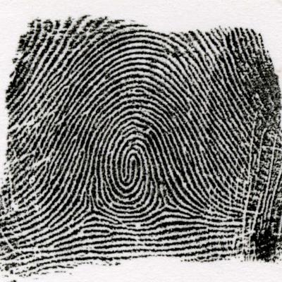 右咬合渦状紋とは、左の指紋と逆の模様を言います