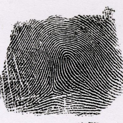 右流蹄状紋とは、左の指紋と逆の模様を言います。 また、左手にあるときは甲種蹄状紋といい、右手にあるときは乙種蹄状紋と言います