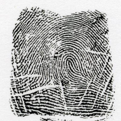 右流閉塞蹄状紋とは、左の指紋と逆の模様を言います。これも乙種と甲種があります