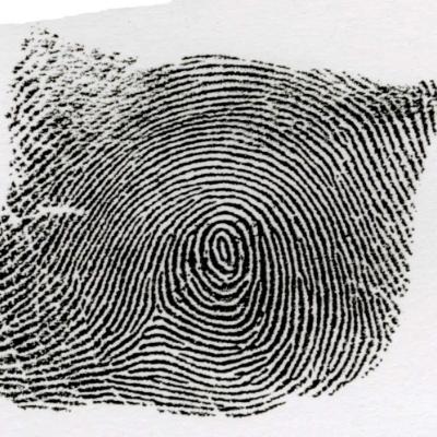 類環状紋:類環状紋とは、中心の円が縦に長い指紋を言います。